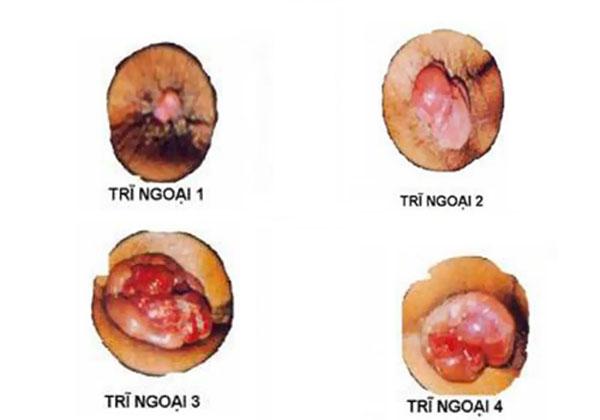 Bệnh trĩ ngoại độ 2 : Nguyên nhân, triệu chứng & cách chữa