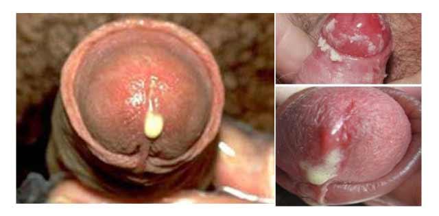Dương vật bị chảy mủ cảnh báo 5 bệnh nam khoa nguy hiểm