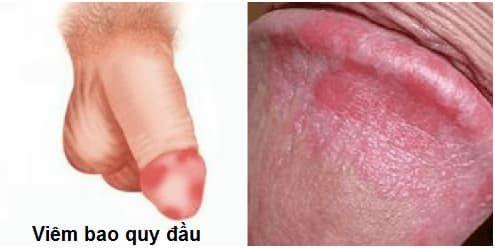 [ Giải Đáp ] Viêm bao quy đầu nhẹ có nguy hiểm không & cách chữa