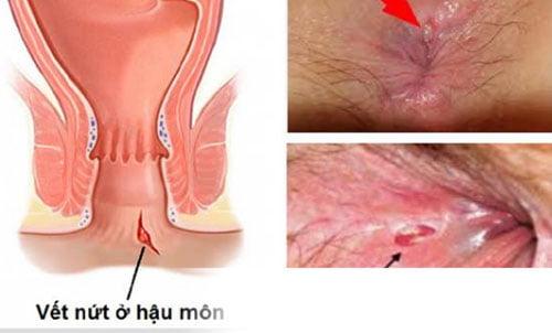 [ Giải Đáp ] Rách hậu môn chảy máu là bệnh gì & cách điều trị