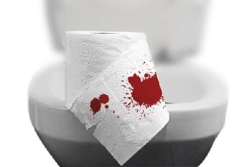 Đi ngoài ra máu nhỏ giọt là bệnh gì & cách chữa hiệu quả