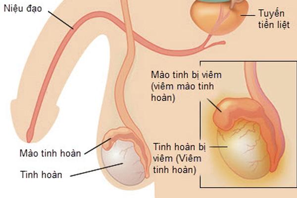 [ Tổng hợp ] 8 nguyên nhân đau tức tinh hoàn nam giới