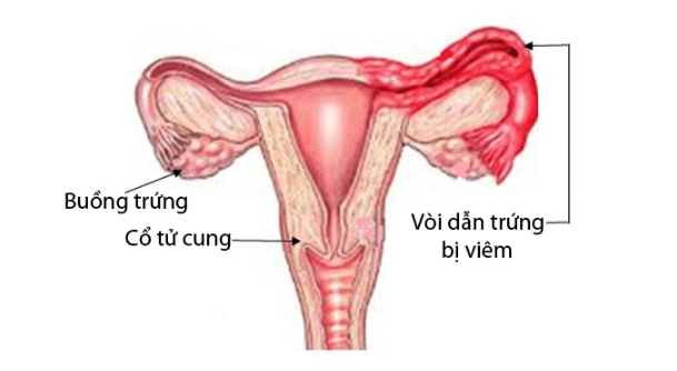 { Nhiễm Chlamydia } là gì ? Tìm hiểu nguyên nhân + triệu chứng của bệnh