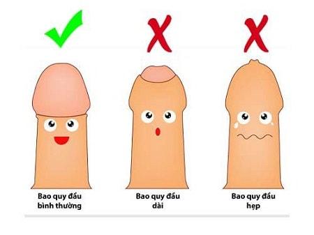 [ Hẹp bao quy đầu ] là gì ? Nguyên nhân, triệu chứng và phương pháp cắt hiệu quả
