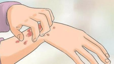 [ GIẢI ĐÁP ] Bệnh giang mai có chữa được không ? Phương pháp hiện đại 2020