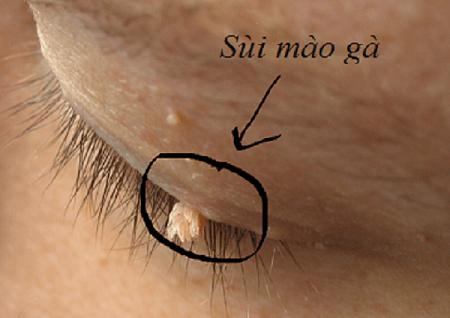 【Sùi mào gà ở mắt 】 Nguyên nhân, dấu hiệu và cách điều trị bệnh hiệu quả hiện nay