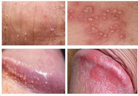 [ HỎI ĐÁP ] Viêm da bao quy đầu là gì & có tự khỏi được không?