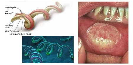 [ Xoắn khuẩn giang mai ] là gì ? Nguyên nhân, dấu hiệu và cách điều trị hiệu quả