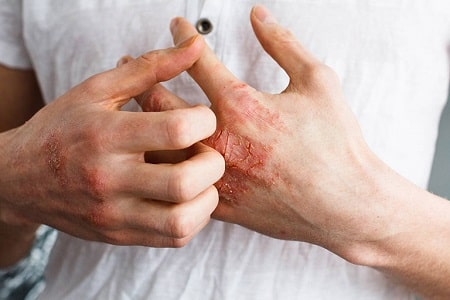 [Giải đáp] Nguyên nhân bệnh giang mai từ đâu & Cách chữa hiệu quả