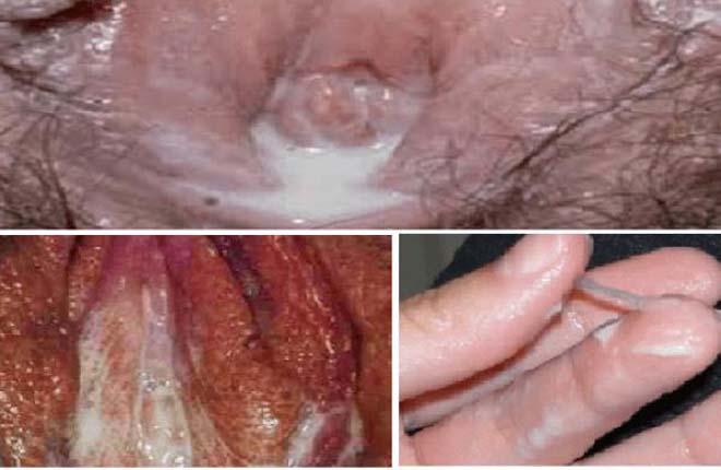 Triệu chứng bệnh lậu ở nữ
