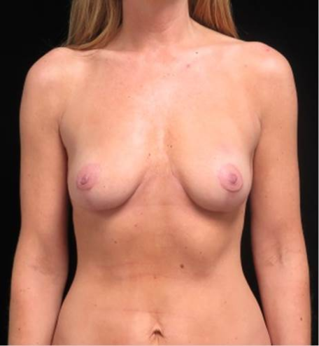Breast fat transfer after