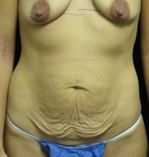 Silicone Implants Before Photo