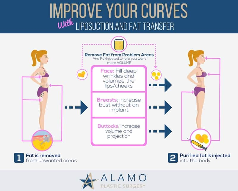 What Is Breast Fat Transfer Alamo Plastic Surgery