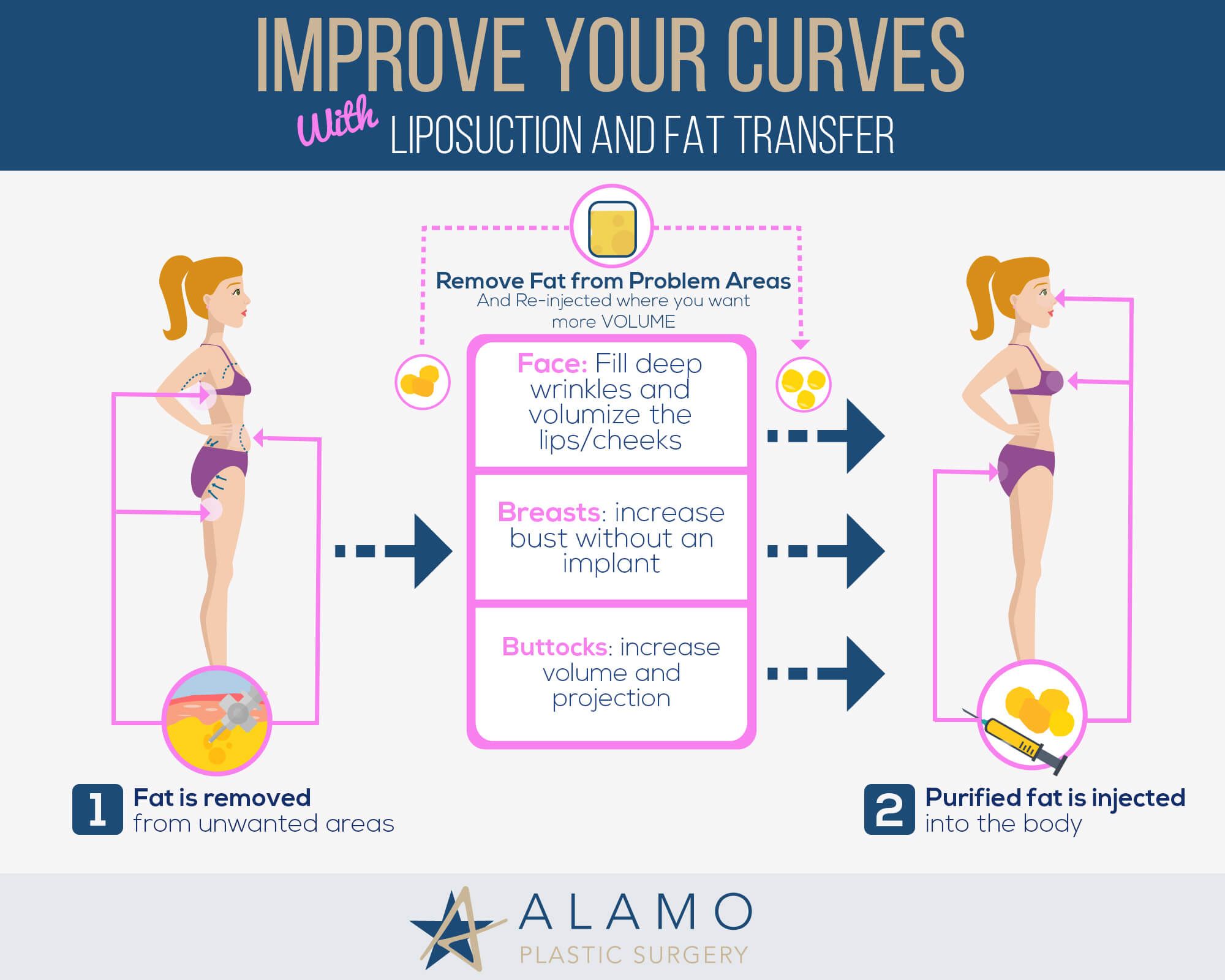 Fat Transfer Infographic