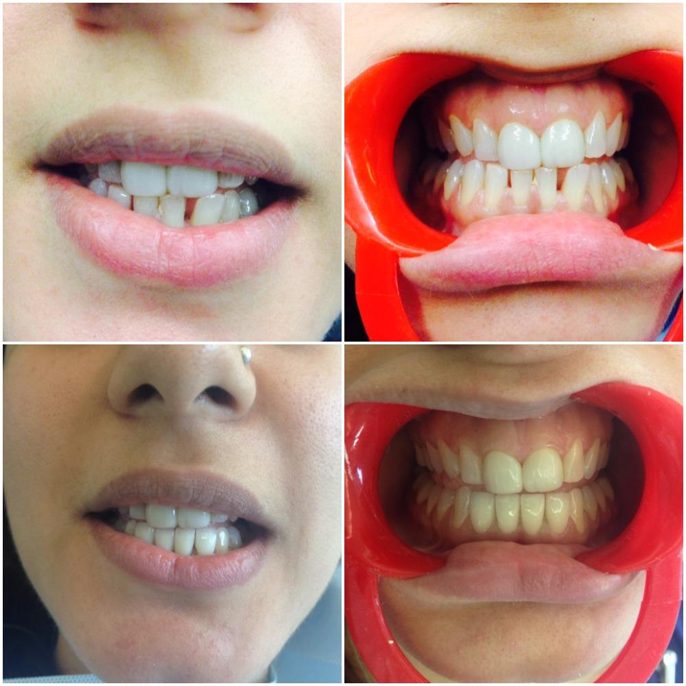 Simar dental tretament