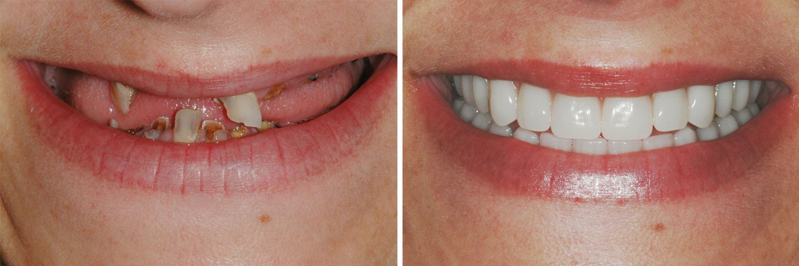 Tooth Repairing