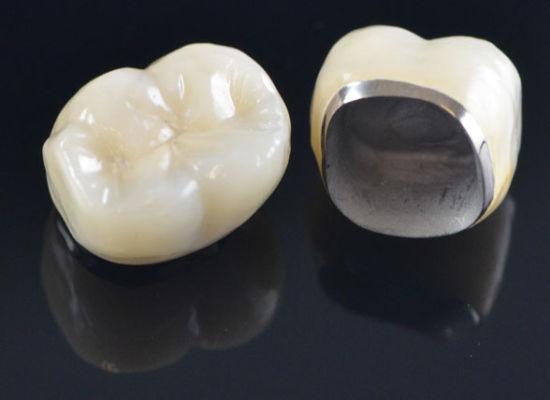Dental braces treatment