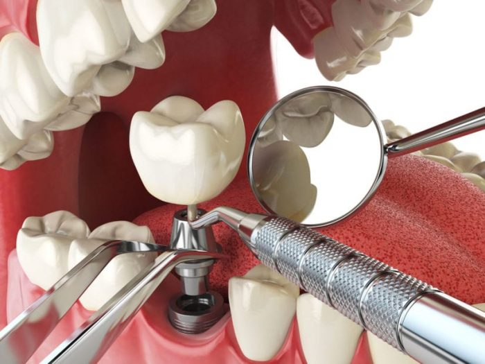 DIFFERENCES BETWEEN MINI DENTAL IMPLANTS AND REGULAR DENTAL IMPLANTS