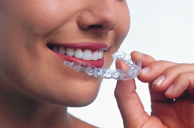 TIPS FOR LIVING WITH BRACES