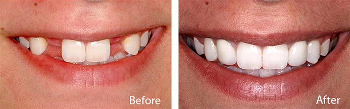 WHAT ARE TEETH IMPLANTS AND HOW CAN THEY BENEFIT PEOPLE?