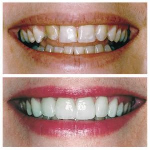 THE BENEFITS AND MERITS OF UNDERGOING A SMILE MAKEOVER PROCESS