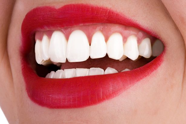 HOW CAN TEETH WHITENING BE A BOON FOR YOUR DAMAGED TEETH?