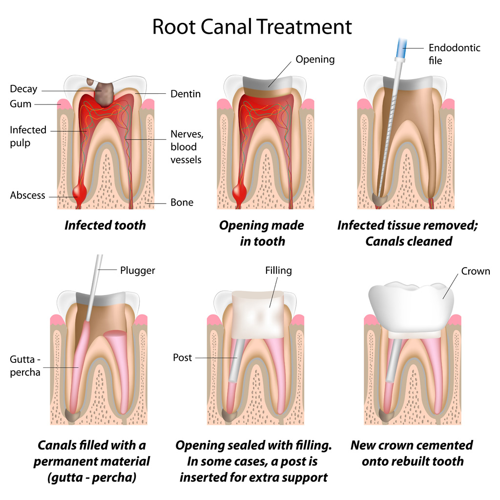 ROOT CANAL TREATMENT : A PAINLESS ELIMINATION OF TOOTH PAIN