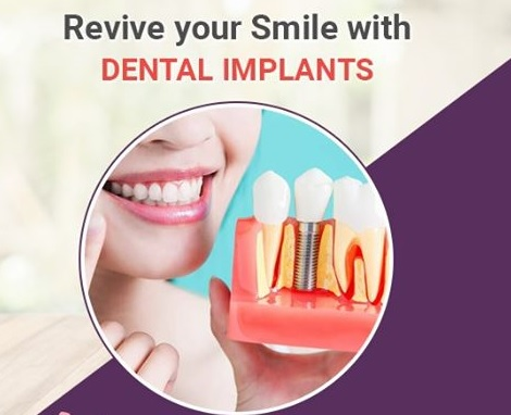 What are Dental Implants? Types & Procedures