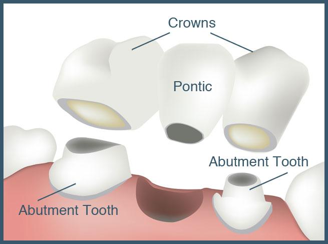 When Do We Need Dental Bridge Treatment?