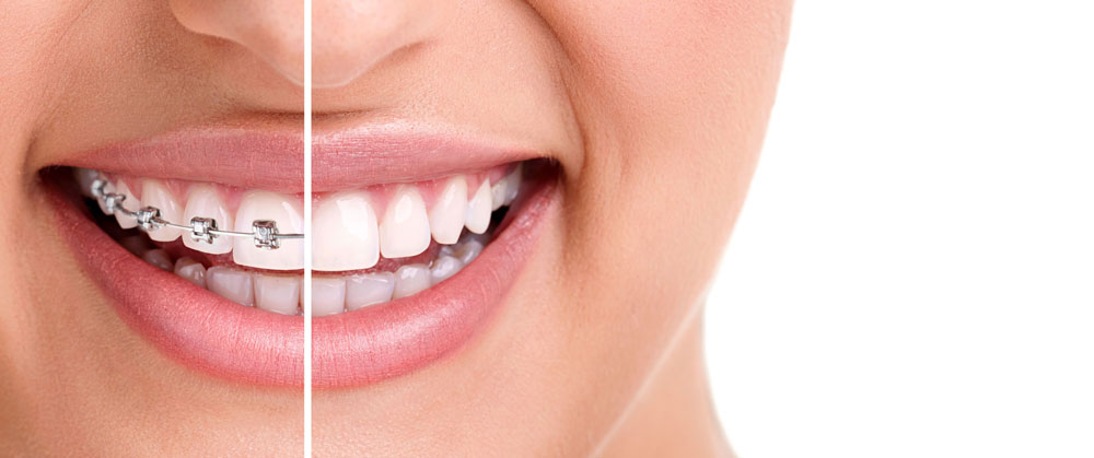 4 Dental Health Problems that can be Fixed by Orthodontic Treatment
