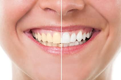 5 Best Ways to Whiten Teeth Fast