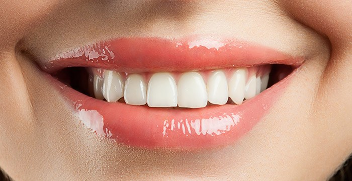 All- on-4 Dental Implant Treatments - Procedure, Recovery and Risks