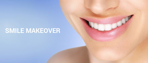 Smile Makeover - How can you get that Bollywood smile?