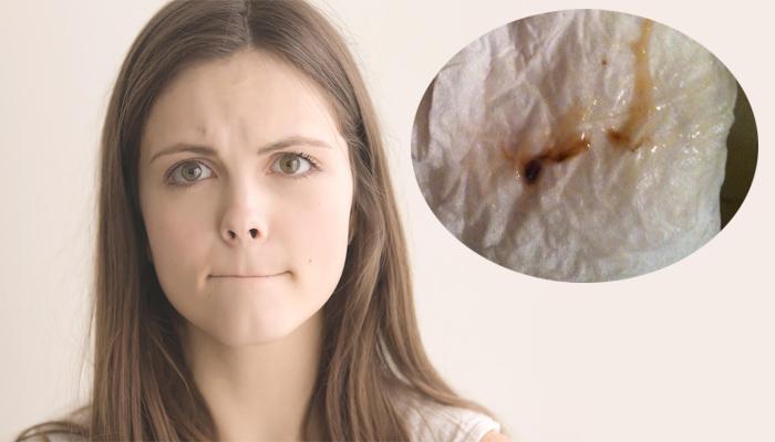 Khí hư màu nâu và cách trị khí hư màu nâu tại nhà