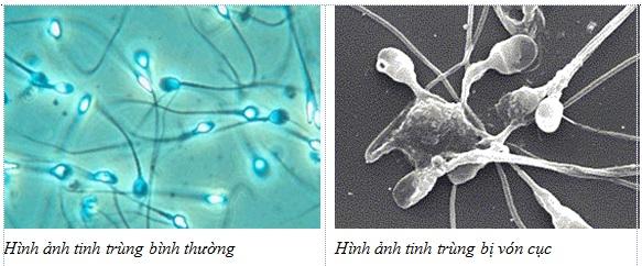 Hình ảnh tinh trùng vón cục ở nam