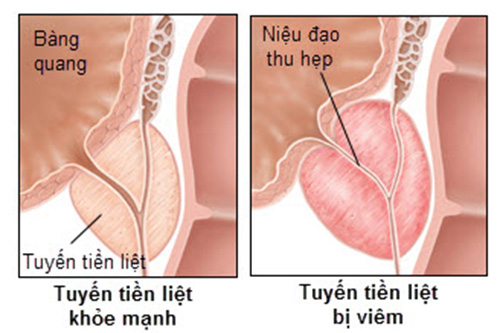 Đau rát bao quy đầu do viêm tuyến tiền liệt