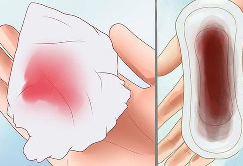 Ra dịch màu nâu có thai không