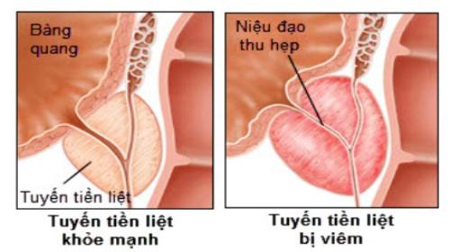 Tinh trùng vón cục màu vàng do viêm tuyến tiền liệt