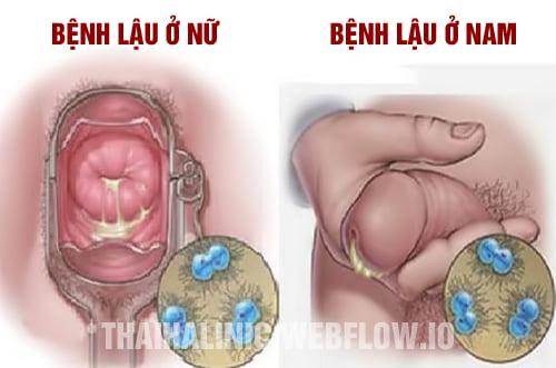 Chữa bệnh lậu ở đâu? Top 6 phòng khám bệnh lậu tốt nhất Hà Nội