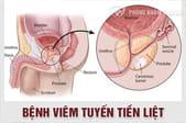 Bệnh viêm tuyến tiền liệt là gì? Nguyên nhân, triệu chứng, tác hại và cách chữa trị