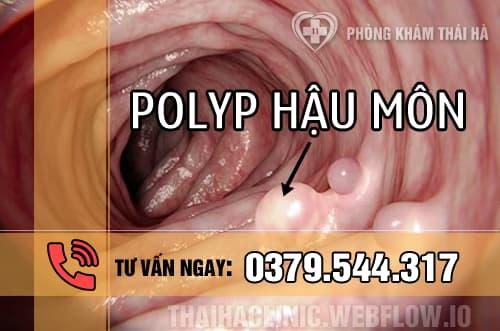 Bệnh Polyp hậu môn là gì và có nguy hiểm không