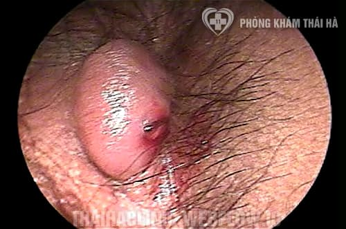 Hình ảnh bệnh trĩ ngoại độ 1