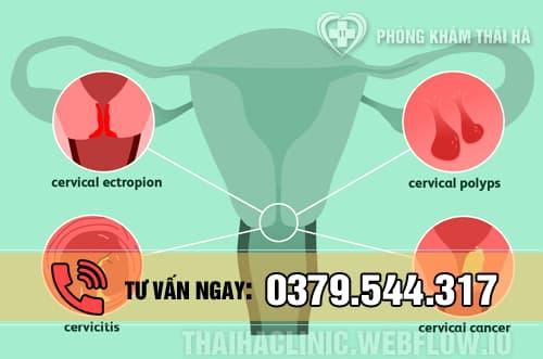 Nguyên nhân gây ra bệnh viêm cổ tử cung