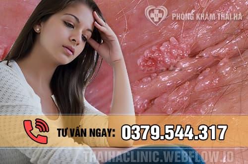 Bệnh sùi mào gà ở nữ giới