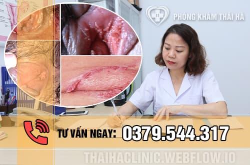 Dấu hiệu bệnh sùi mào gà ở nữ giới
