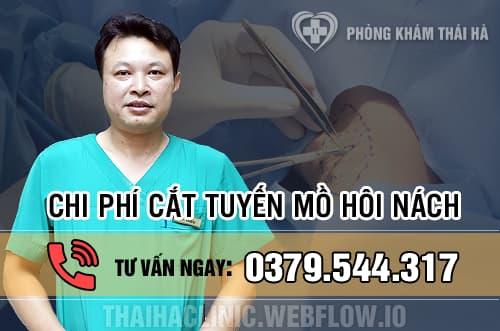 Phẫu thuật cắt tuyến mồ hôi nách hết bao nhiêu tiền?
