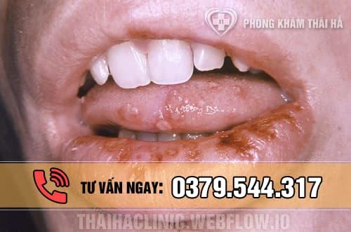 Săng giang mai ở môi, miệng và lưỡi