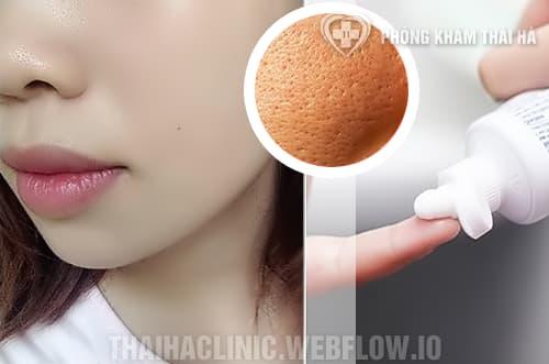 Cách trị mụn đầu đen bằng kem đánh răng an toàn - hiệu quả tại nhà