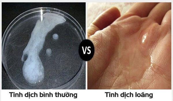 Tinh trùng loãng như nước có sao không? cách điều trị