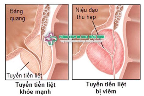 Viêm tuyến tiền liệt là gì dấu hiệu triệu chứng cách chữa trị